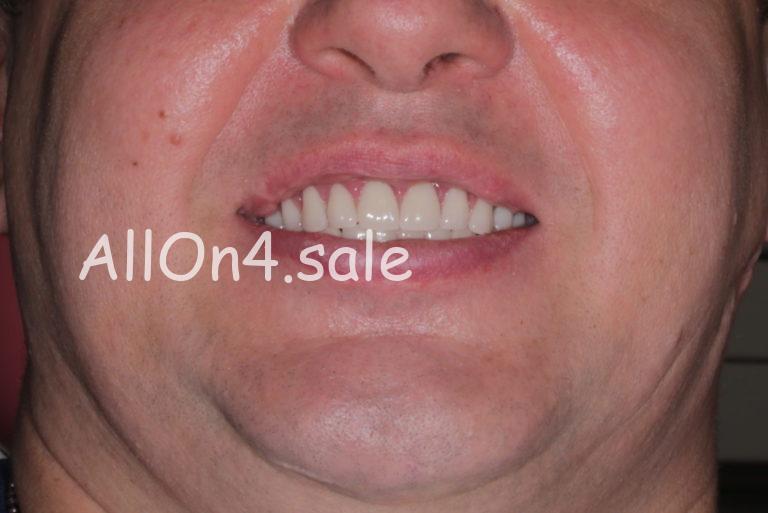 Пациент Ф. – Установка несъемных зубных протезов нового поколения