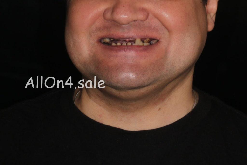 Фото ДО – Пациент Л. – Выполнили полное протезирование зубов на имплантах
