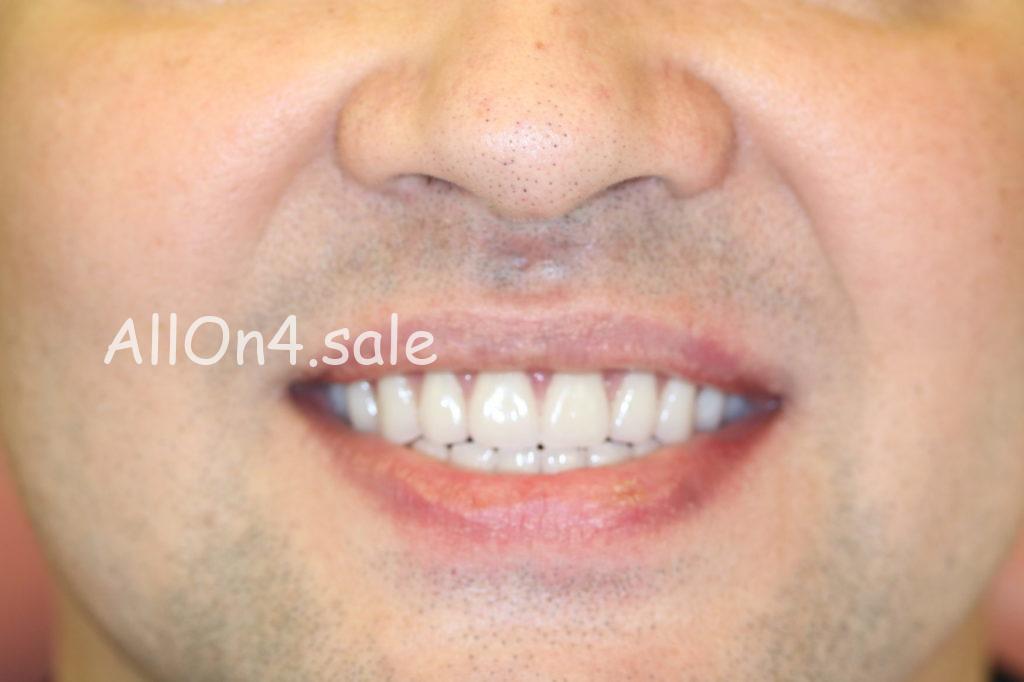 Фото ПОСЛЕ – Пациент Л. – Выполнили полное протезирование зубов на имплантах