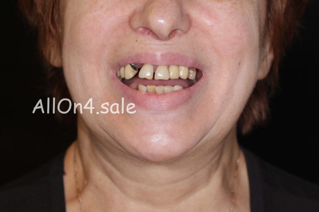 Фото ДО – Пациентка С. – Восстановили зубы за 1 день