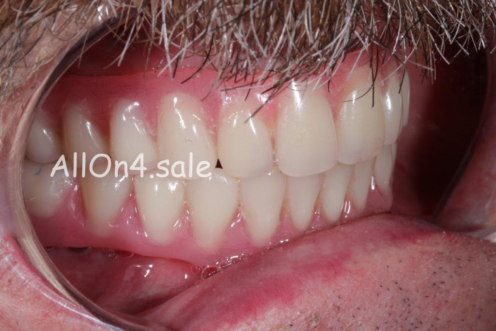 Фото ПОСЛЕ – Пациент Х. – Несъемное протезирование зубов на имплантах