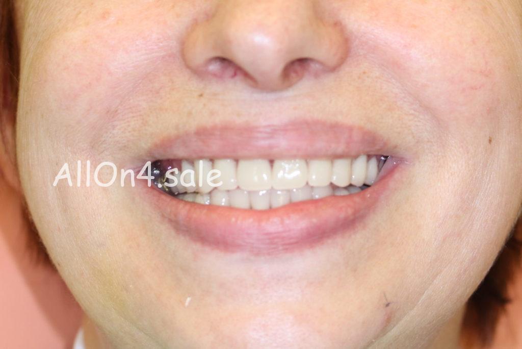 Фото ПОСЛЕ – Пациентка С. – Восстановили зубы за 1 день