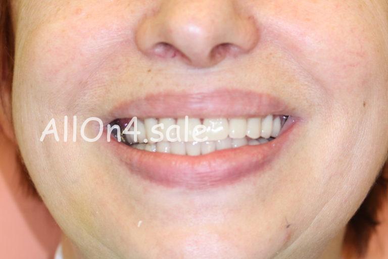 Пациентка С. – Восстановили зубы за 1 день