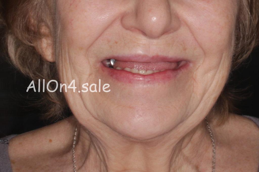 Фото ДО – Пациентка Т. – вставили зубы при полном отсутствии
