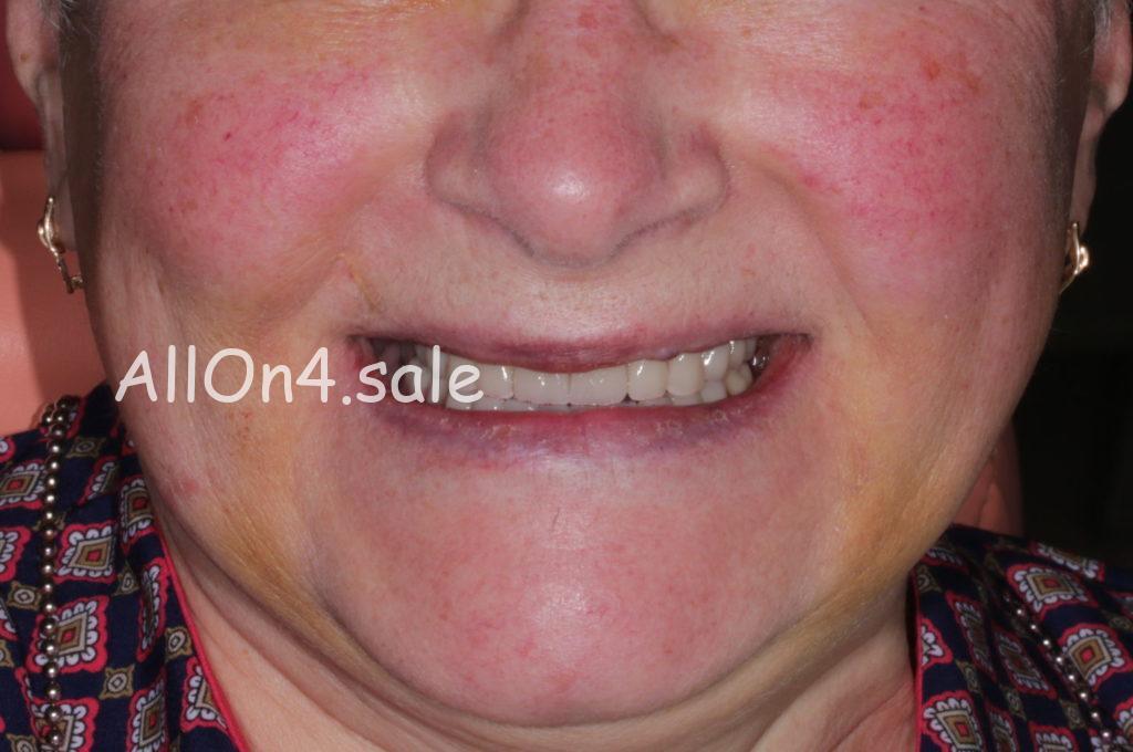 Фото ПОСЛЕ – Пациентка К. – Установка протезов при полном отсутствии зубов