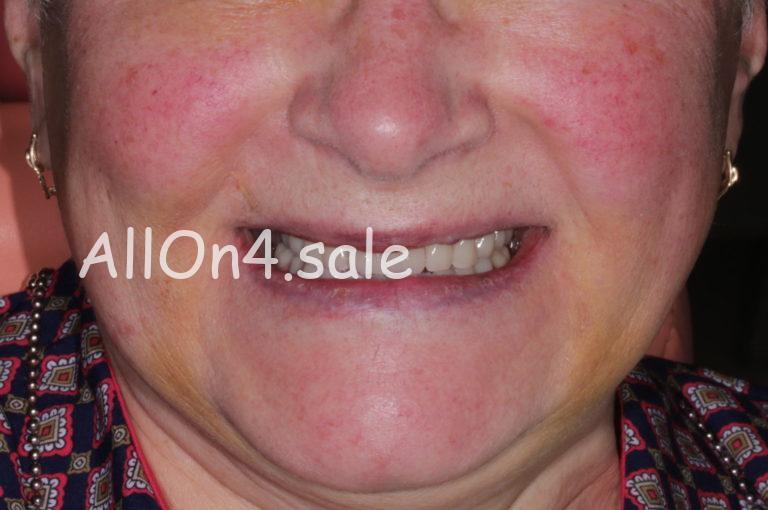 Пациентка К. – Установка протезов при полном отсутствии зубов