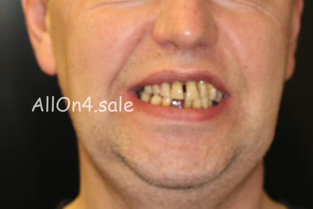Фото ДО – Пациент Г. – Выполнили имплантацию зубов за 1 день