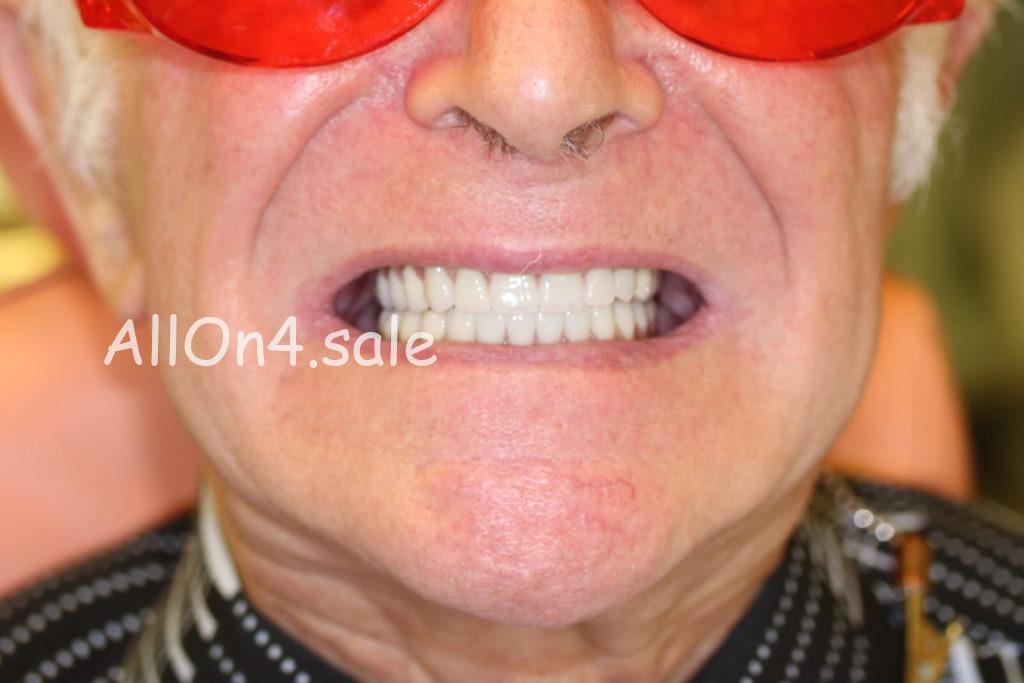 Фото ПОСЛЕ – Пациент Б. – протезирование обеих челюстей при адентии