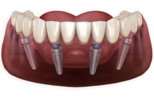 All-on-4 имплантация всей челюсти