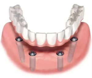 Схема протезирования на имплантах All on 4