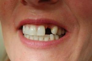 Нет одного зуба - показание к классической имплантации