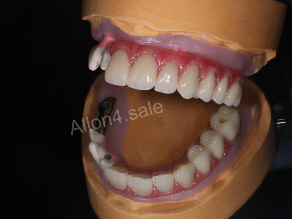керамокомпозитный протез верхней челюсти