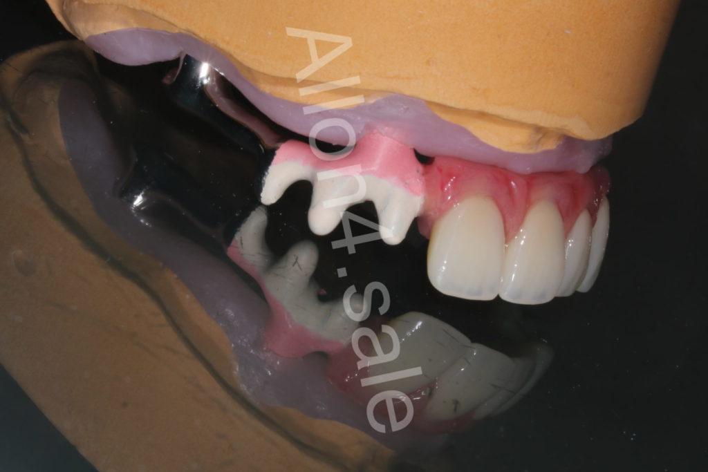 структура протеза верхней челюсти