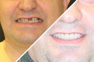 """Пациент Б. – """"Все зубы за один день"""" верх и низ"""