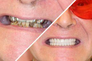 Пациент Б. – протезирование обеих челюстей при адентии