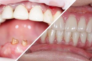 """Пациент В. – верхние и нижние зубы по протоколу """"All-on-4"""""""