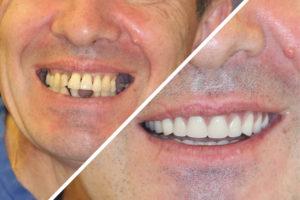 Пациент В. – несъемное протезирование на 4 имплантах обеих челюстей