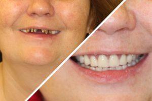 Пациентка Г. – Протезирование All-on-four верхнего и нижнего зубных рядов