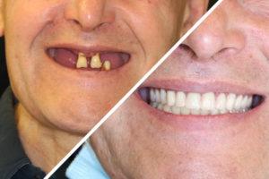 Пациент Г. – Все на 4 имплантах на верхней и нижней челюсти
