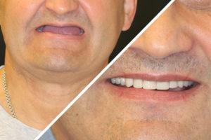 Пациент Г. – Все на 4 имплантах на верхней и нижней челюсти при частичной адентии