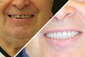 Пациент Д. – протезирование обеих челюстей по протоколу All on 4