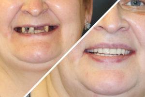 Пациентка Д. – выполнены несъемные зубные протезы