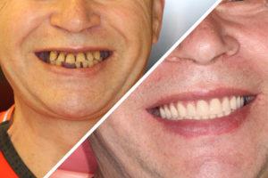 Пациент Е. – Установка несъемных зубных протезов