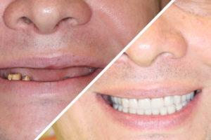 Пациент Е. – All-on-4 имплантация верхней и нижней челюстей