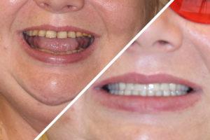 Пациентка Е. – Вставили зубы за 1 день по протоколу Allon4