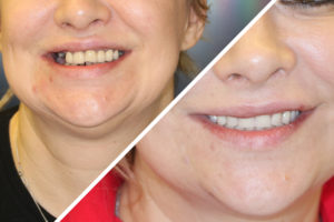 Пациентка Е. – Протезирование зубов на 4 имплантах на обеих челюстях