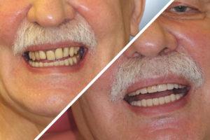 Пациент И. – Выполнено протезирование зубов за один день