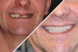 Пациент И. – Протезирование при полном отсутствии верхних зубов