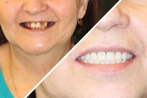 Пациентка К. – Все зубы за 1 день на верхней и нижней челюсти