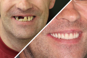 Пациент Л. – Полное протезирование зубов верхнего и нижнего ряда