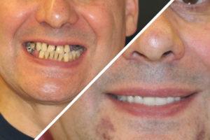 Пациент К. – Выполнили зубные протезы за один день
