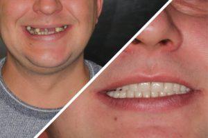 Пациент А. – Несъемные протезы зубов на 4 имплантахes(18)