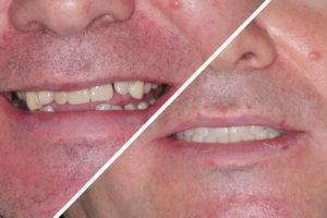 Пациент Ж. – All-on-4 имплантация под ключ обе челюсти