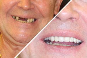 Пациент Н. – Протезирование верхней челюсти по технологии Зубы за 1 день