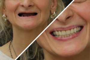 Зубы за 1 день по протоколам All-on-4 и All-on-6