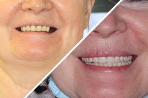 Пациентка О. – Несъемные зубные протезы при частичном отсутствии зубов