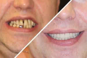 MyCollages(4Пациент Г. – Выполнили имплантацию зубов за 1 день1)