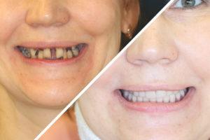 Пациентка Т. – Сделали все зубы за 1 день по методу Allon4