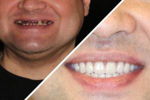 Пациент Л. – Выполнили полное протезирование зубов на имплантах