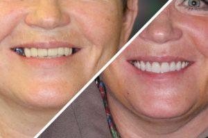 Пациентка Д. – Поставили несъемный зубной протез на верхнюю и нижнюю челюсть