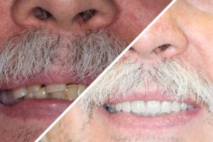 Пациент Р. – Сделали несъемные зубные протезы на 6 имплантах