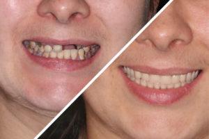 Пациентка Я. – Сделали зубные протезы на четырех имплантах