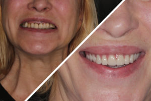"Пациентка Я. – Протезирование обеих челюстей на 4 имплантах по методу ""Все на четырёх"""
