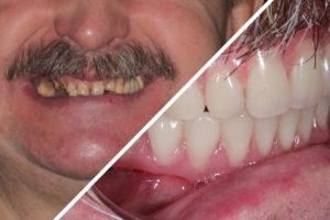 Пациент Х. – Несъемное протезирование зубов на имплантах